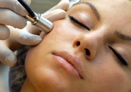 Microdermabrasion facial benefits